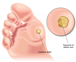What causes plantar warts on the bottom of your feet