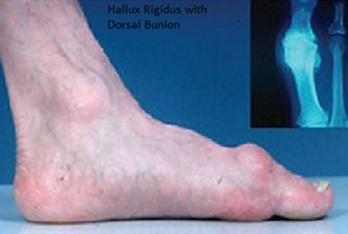 Hallux Rigidus | Foot & Ankle Clinic
