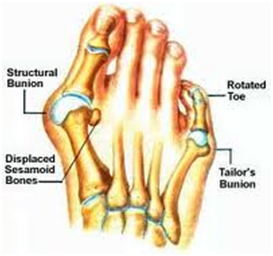 3-tailors-bunion