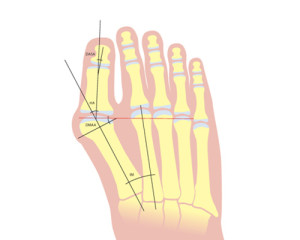 Bunion Or Hallux Abducto Valgus Foot Amp Ankle Clinic