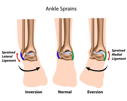 Ankle Sprain Foot Ankle Clinic