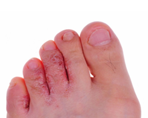different types of foot fungus #11
