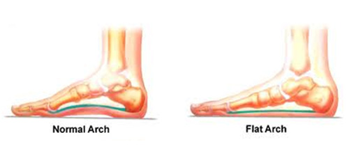 Flat Feet Foot Ankle Clinic