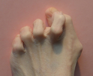 hammertoe | foot & ankle clinic, Skeleton