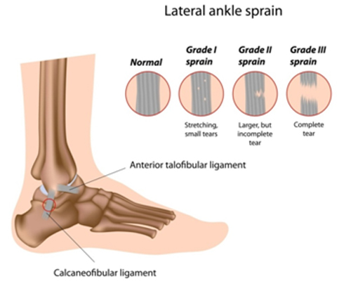 ankle sprain Background ankle sprains are highly prevalent with high risk of recurrence  consequently, there are a significant number of research reports examining.