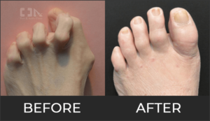 Hammertoes Before & After