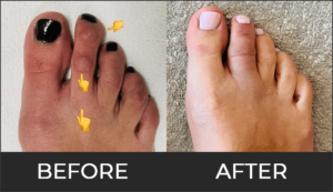 Toe Shortening Before & After