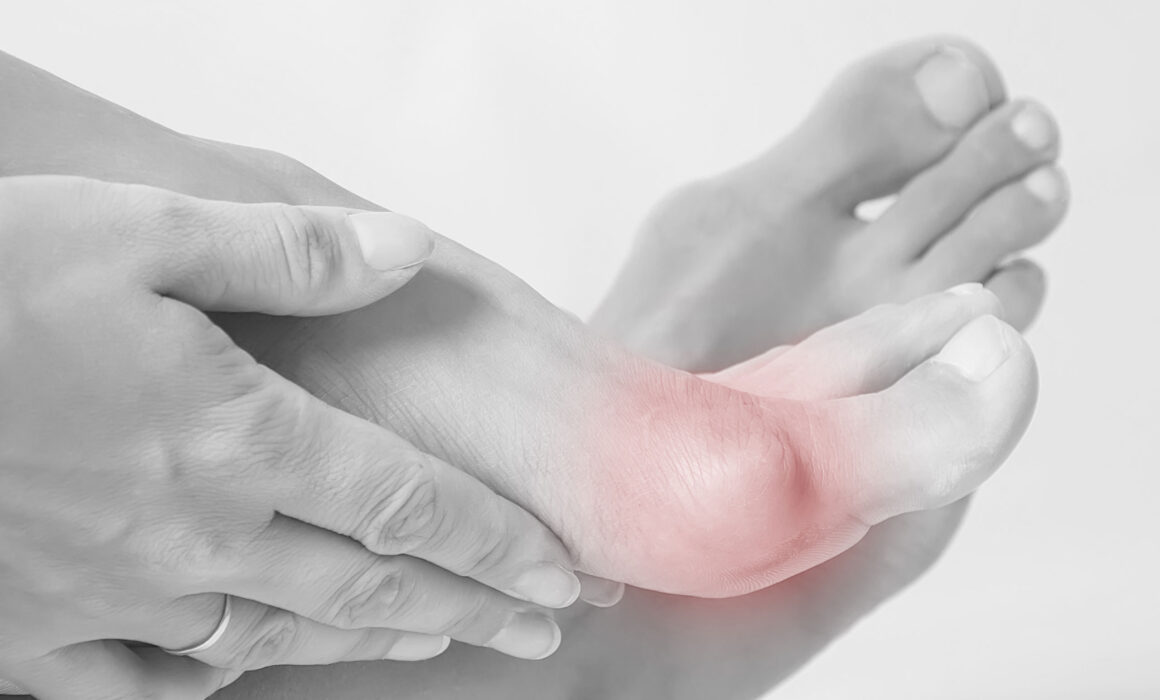 Hallux Valgus: Symptoms, Causes, and Treatment