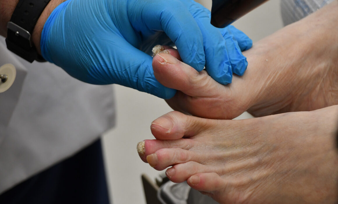 MIS Alternatives to Traditional Bunion Surgery