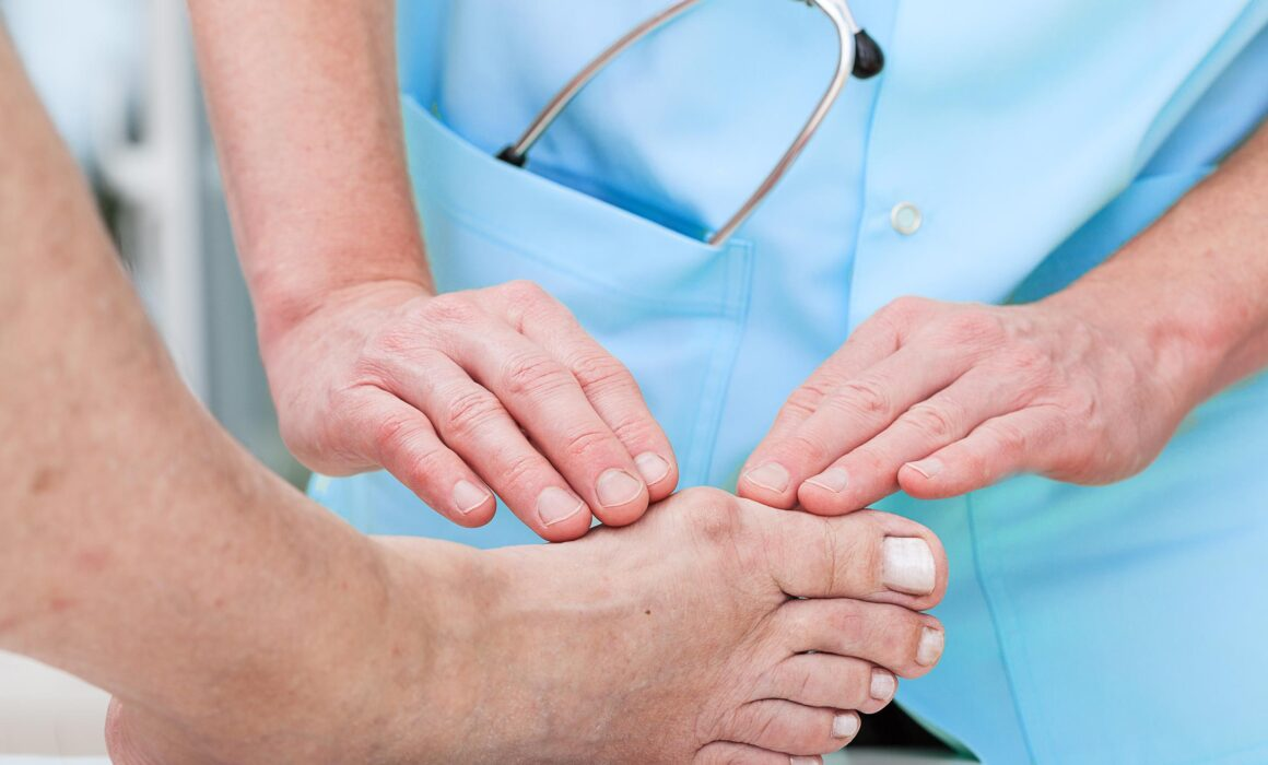 What Makes Bunions So Common?